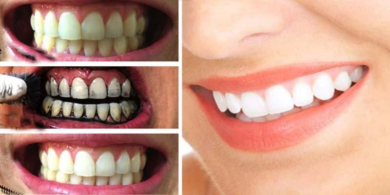 Cách làm trắng răng từ bánh mì cháy