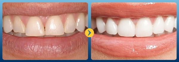 Trước và sau khi làm trắng răng với baking soda