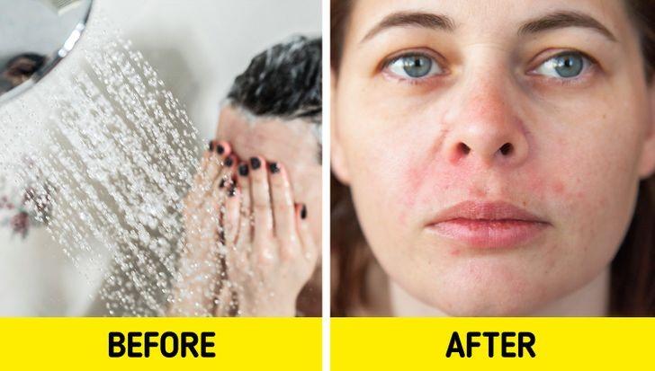 Làn da của bạn có thể bị ngứa và kích ứng