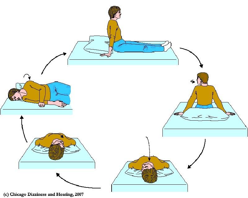Liệu pháp Epley dùng để điều trị chứng chóng mặt