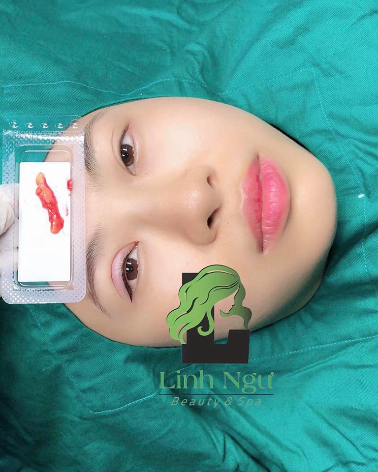 LINH NGƯ - Beauty & Spa