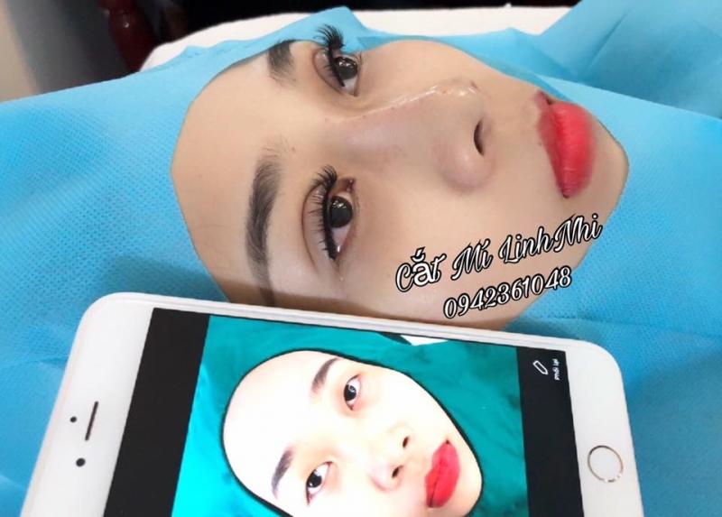 Linh Nhi Nhấn mí