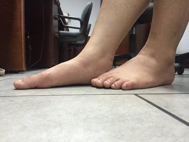 Lòng bàn chân phẳng