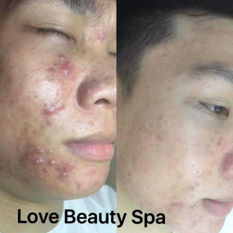 Love Beauty Spa-Quảng Ninh