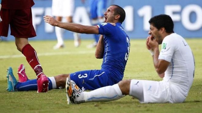 Hình ảnh sau khi Suarez cắn vào vai Chiellini tại vòng chung kết World cup 2014