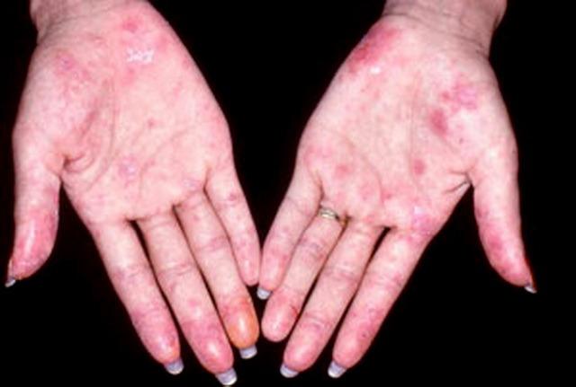 Lupus ban đỏ hệ thống là bệnh hiểm nghèo thường gặp ở trẻ em