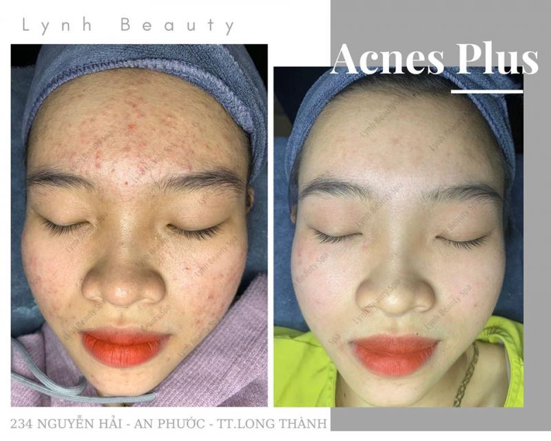 Lynh Beauty Spa