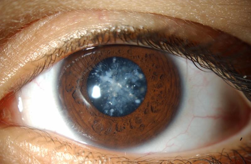Mắt nhìn thấy các đốm, vệt báo hiệu nhiều bệnh nguy hiểm liên quan đến mắt