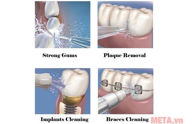 Sản phẩm còn đặc biệt phù hợp với việc vệ sinh những chiếc răng giả, đang niềng răng, cấy ghép răng bởi áp lực tia nước, những chiếc răng sẽ được thoải mái tắm mát bằng làn nước trong lành