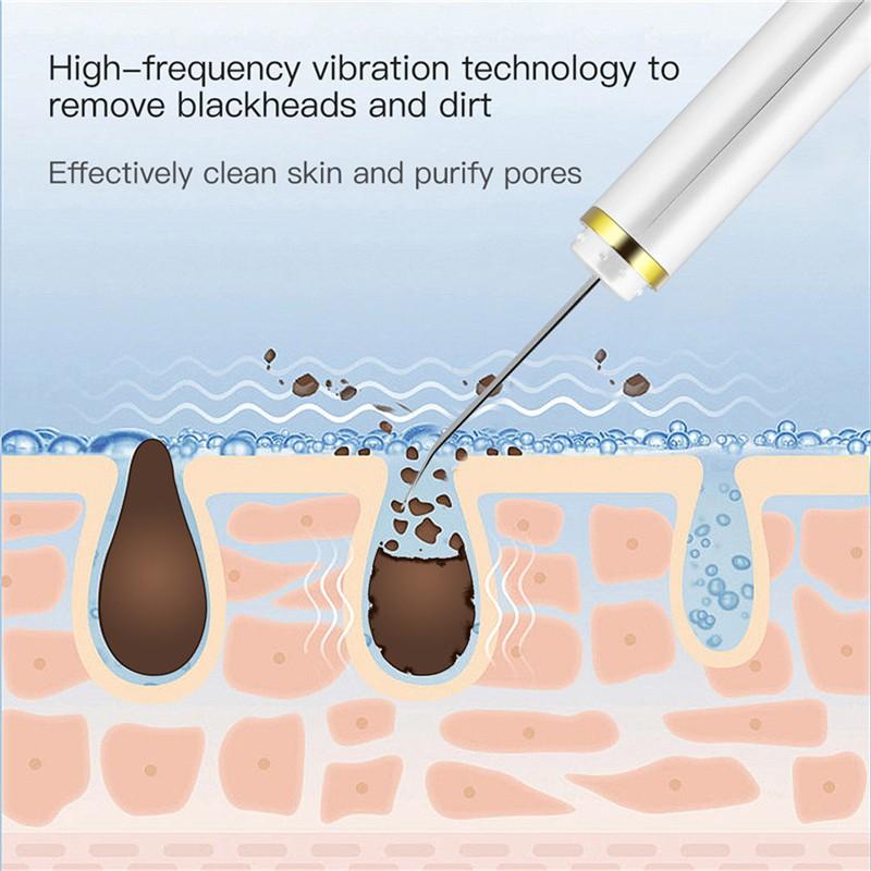 Máy Tẩy Tế Bào Chết CkeyiN Siêu Âm EMS Ion Sạc Pin Loại Bỏ Mụn Đầu Đen Trên Da Mặt