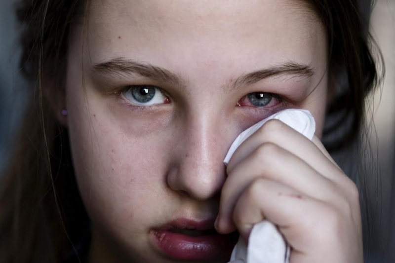 Bị đau mắt đỏ trong thời kỳ mang bầu - Phải làm sao?