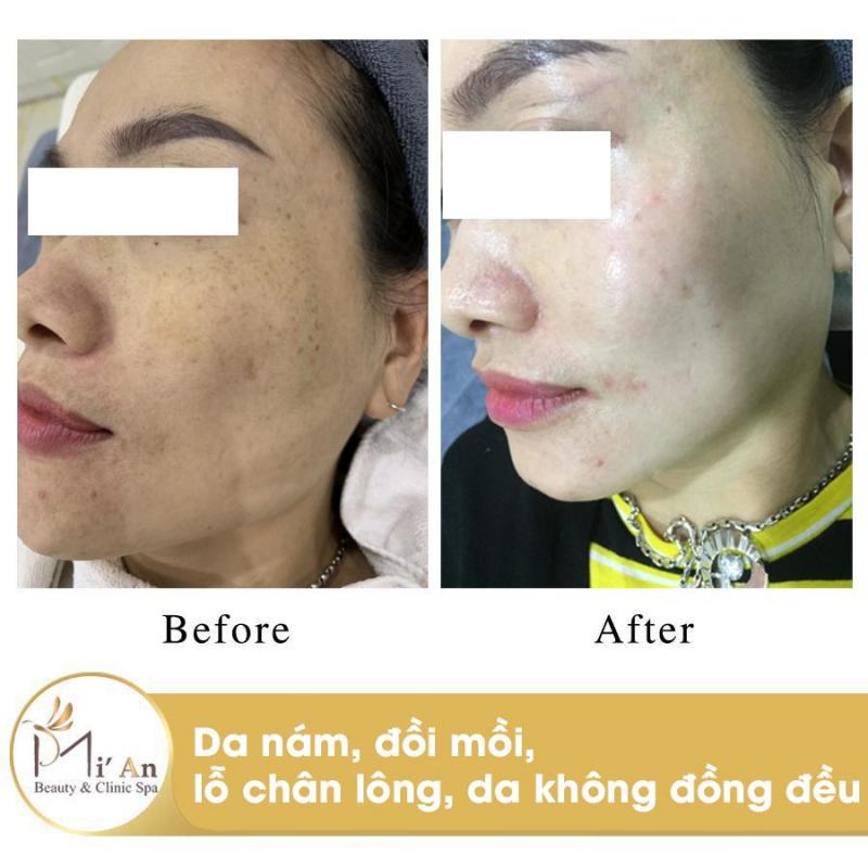 Mi'An Beauty & Clinic Spa