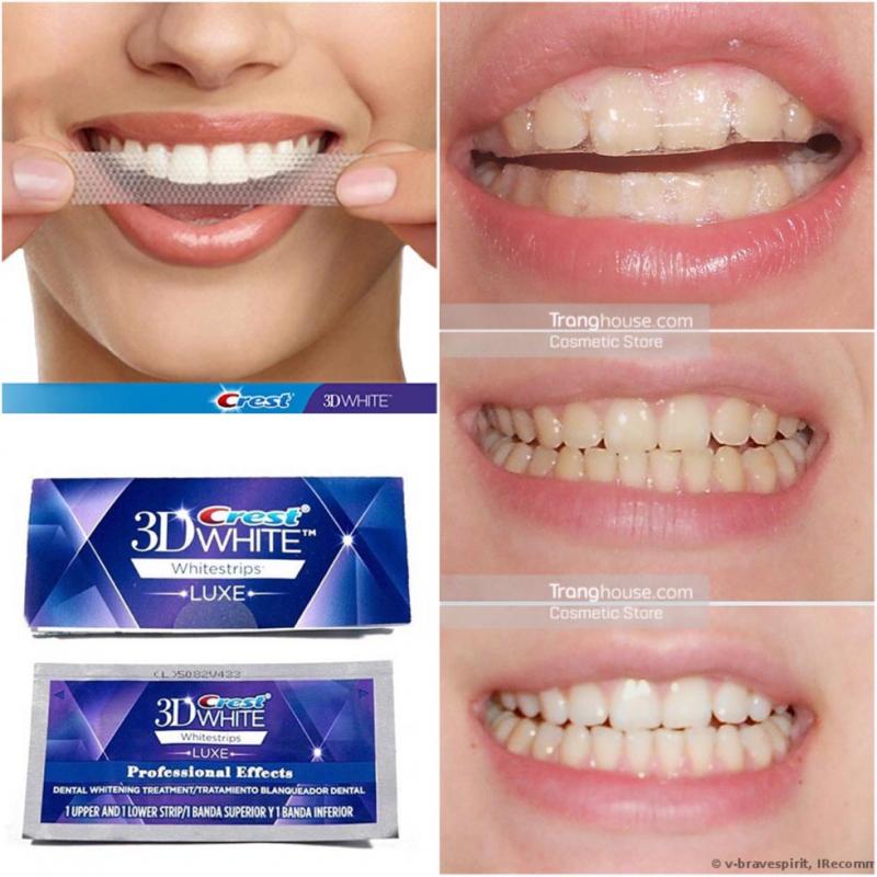 Crest 3D White Whitestrips Advanced Vivid 25X là miếng dán trắng răng thế hệ mới, cung cấp năng lượng giúp làm trắng răng gấp 5 lần so với các sản phẩm thông thường.