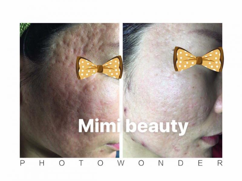 MiMi Beauty & Clinic - Nha Trang