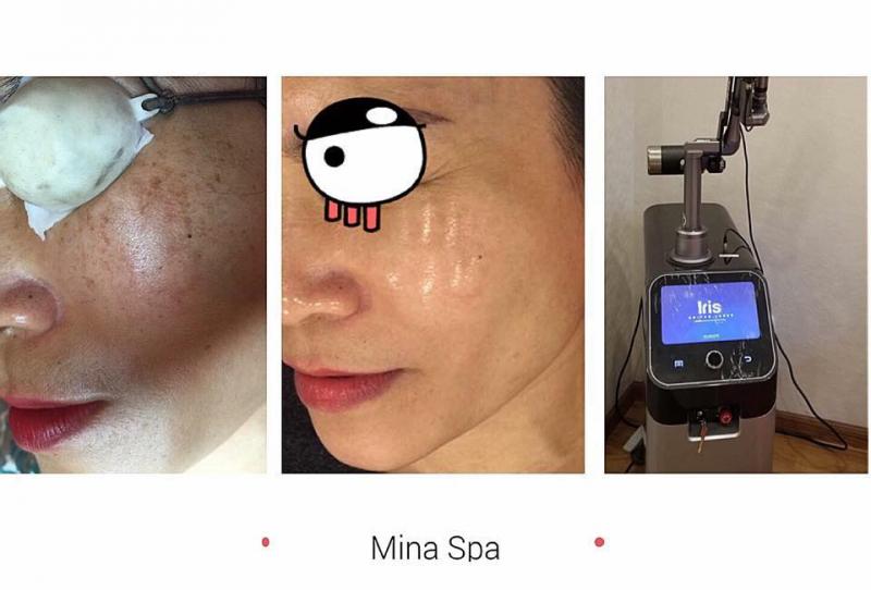 Mina Spa