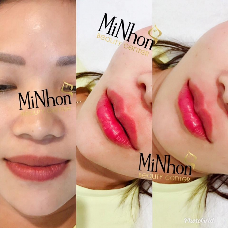 Minhon Beauty Center