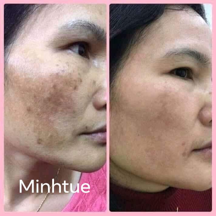 MinhTue Beauty Spa