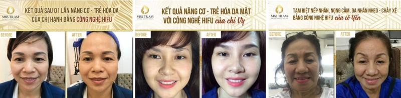 Miss Trâm - Natural Beauty Center: Chuyên trẻ hóa tự nhiên không phẫu thuật uy tín hơn 15 năm ở HCM