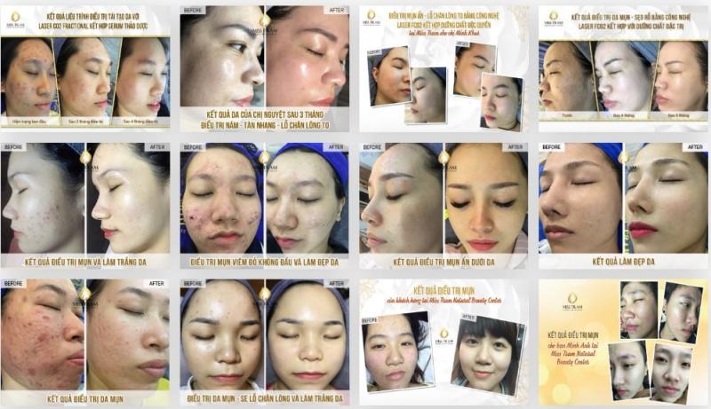 Miss Trâm – Natural Beauty Center: Nơi chuyên trị mụn, thâm sẹo rỗ uy tín có cam kết ở TpHCM