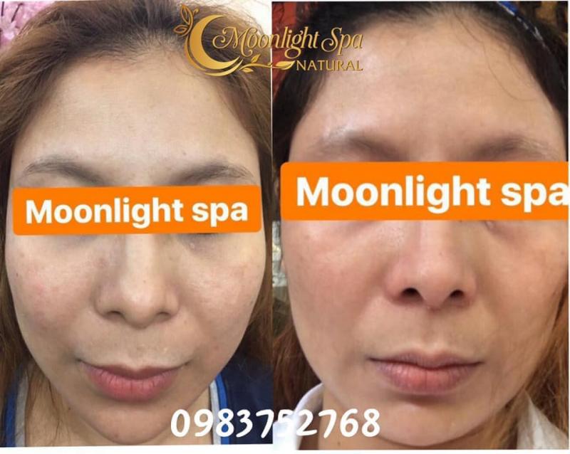 MoonLight Spa