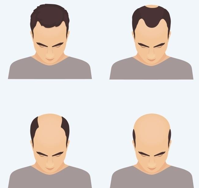 Hói đầu của nam giới có thể di truyền từ mẹ