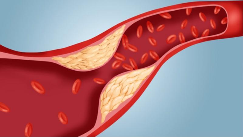 Mức cholesterol trong máu cao