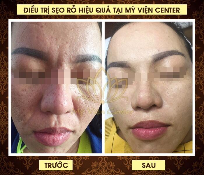 Top 8 Spa chăm sóc da mặt tốt nhất tại quận 11, TP. HCM