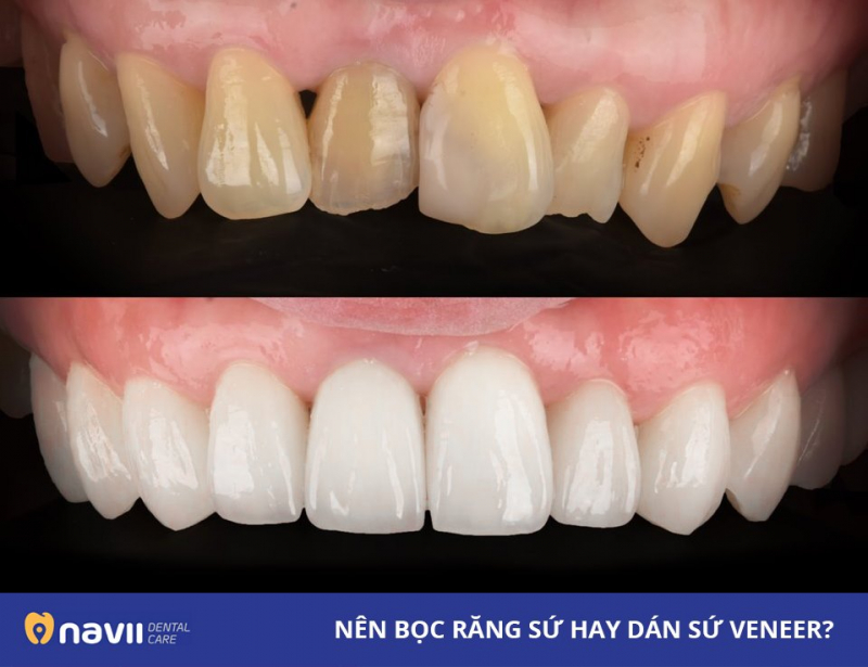 Navii Dental Care