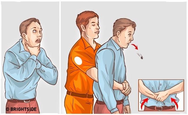 Ngăn chặn nguy cơ bị nghẹt thở bằng phương pháp giật bụng (Heimlich maneuver)