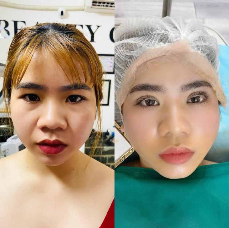 Nguyen Phuong Huyen Beauty Center