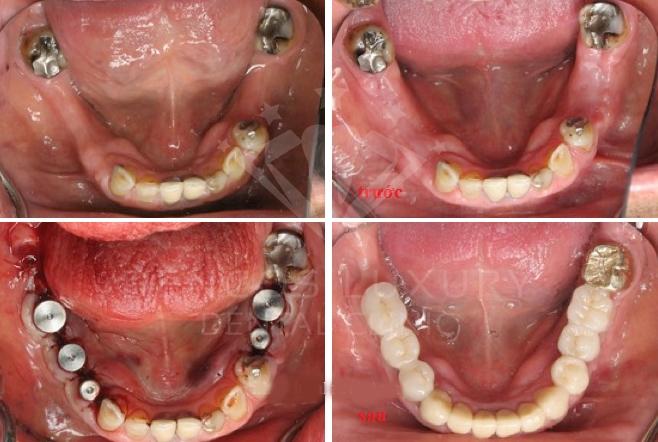 Kỹ thuật trồng răng Implant tại Nha Khoa Quốc Tế Dencos Luxury