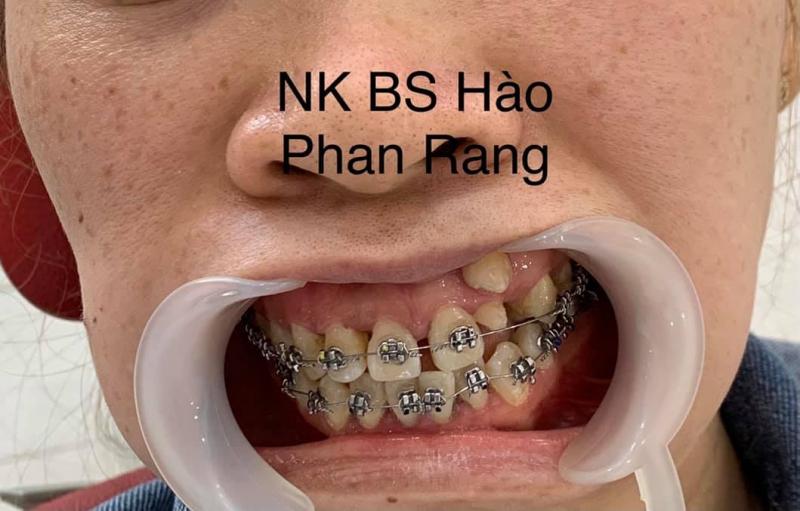 Nha khoa BS Hào