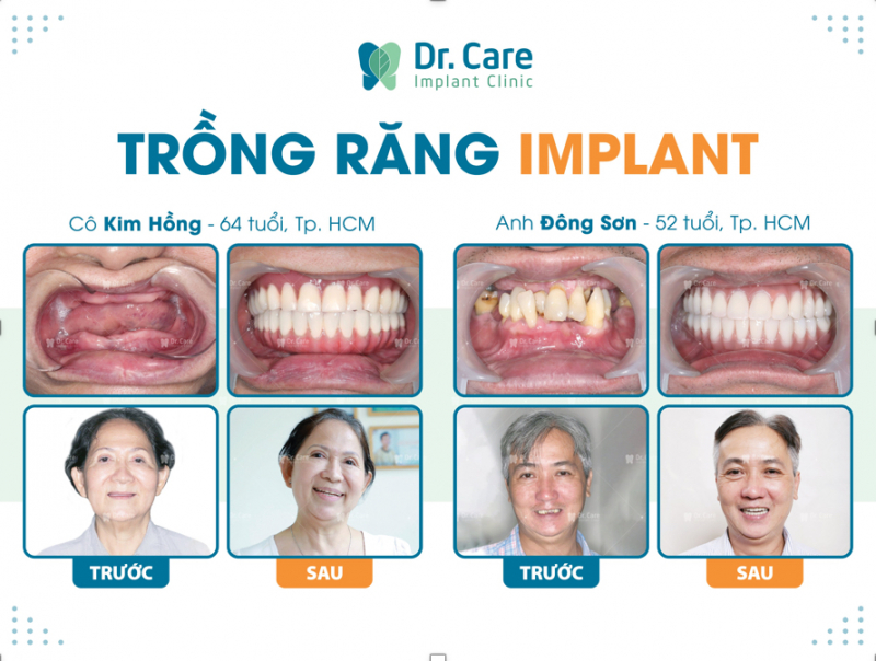Dr. Care là nha khoa đầu tiên chuyên sâu trồng răng Implant cho người trung niên tại Việt Nam.