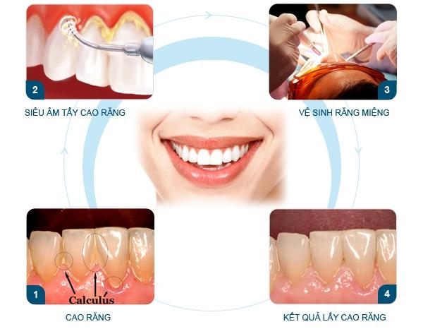 Quy trình lấy cao răng theo tiêu chuẩn Hoa Kỳ.
