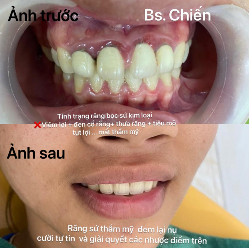 Nha Khoa Hà Nội