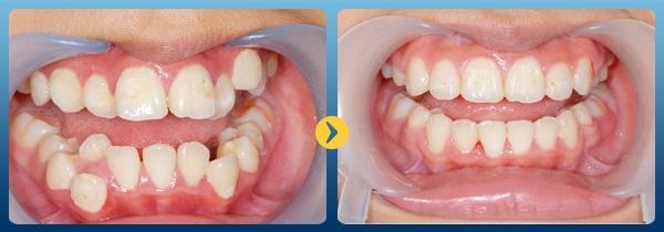 Khách hàng trước và sau niềng răng tại nha khoa Kim