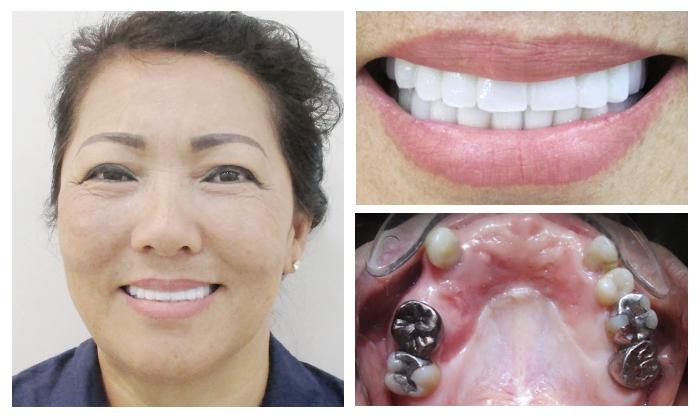 Khách hàng trồng răng implant tại nha khoa Kim