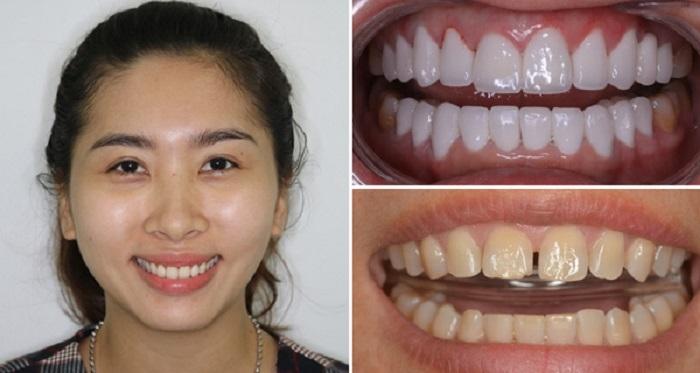 Khách hàng bọc răng sứ tại nha khoa Kim