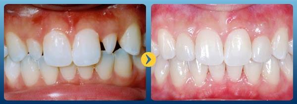 Kết quả đã đạt được khi sử dụng dịch vụ bọc răng sứ tại Nha khoa Kim