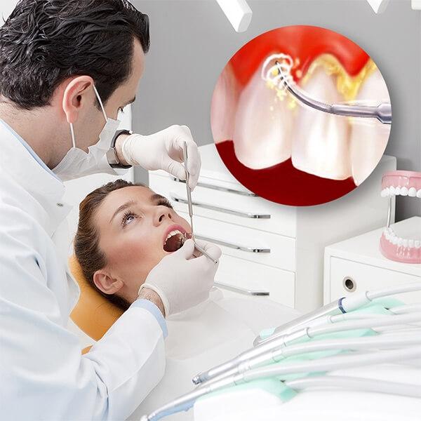Lấy cao răng tại nha khoa Kim không làm hại răng thật