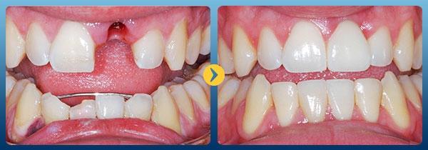 Hình ảnh khách hàng trước và sau điều trị trồng răng Implant tại nha khoa Kim