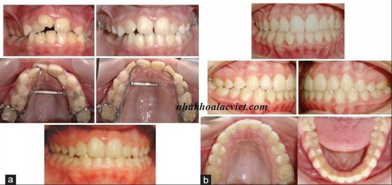 Hình ảnh khách hàng trước và sau niềng răng tại nha khoa Lạc Việt