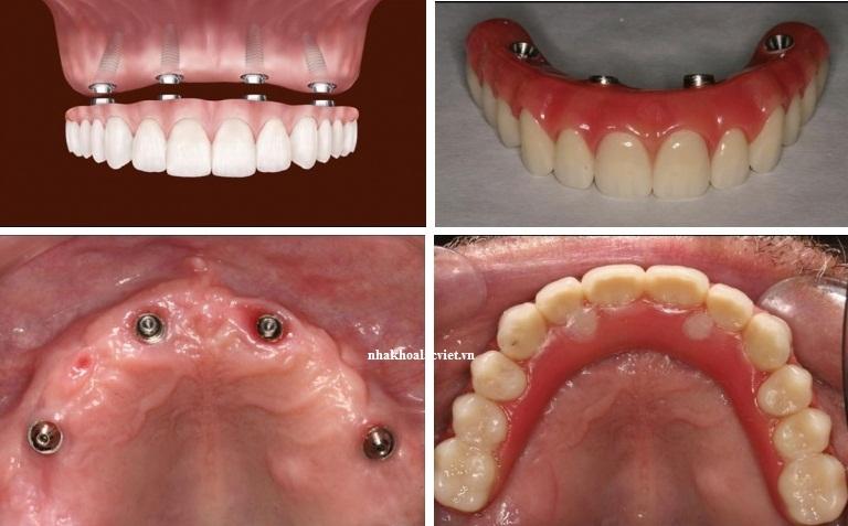 Kỹ thuật all – on – 4: cấy ghép implant toàn hàm với chỉ 4 implant
