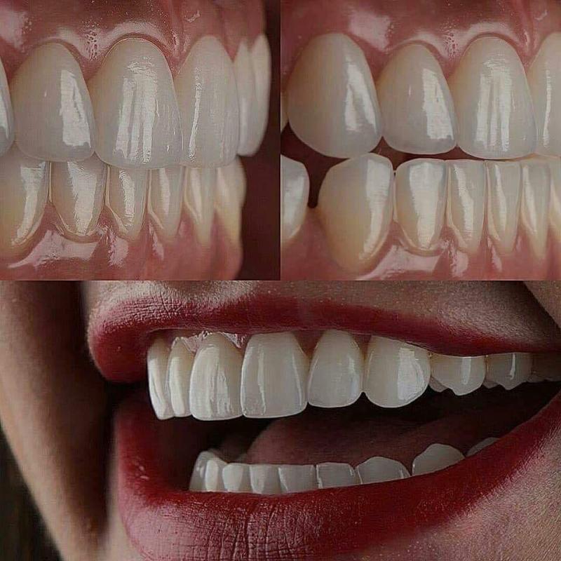 Răng đẹp hơn khi đến với Nha khoa Lê Gia