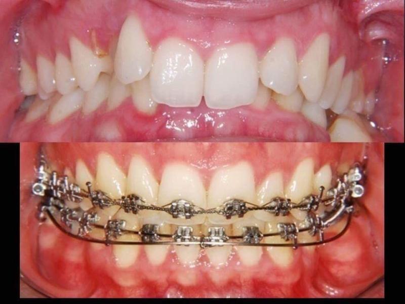 Niềng răng và điều chỉnh răng cho nụ cười đẹp hơn