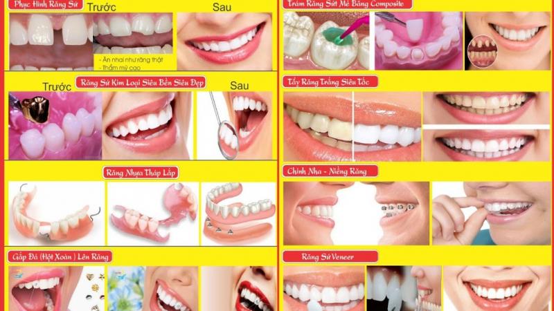 Nha Khoa Minh Đức Sài Gòn, địa chỉ vàng cho hàm răng đẹp