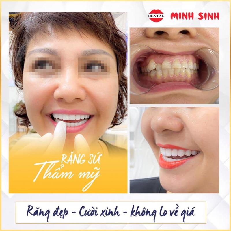 NHA KHOA MINH SINH