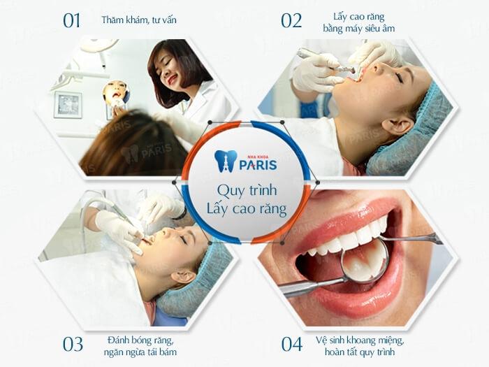 Quy trình cạo vôi răng tại Nha khoa Paris.