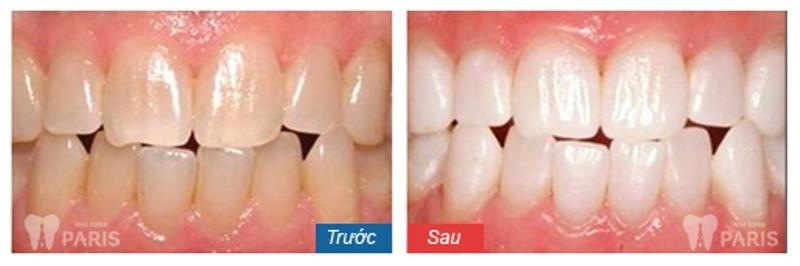 Kết quả bọc răng sứ tại nha khoa Paris