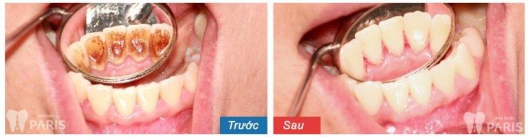Khách hàng trước và sau lấy cao răng tại nha khoa Paris